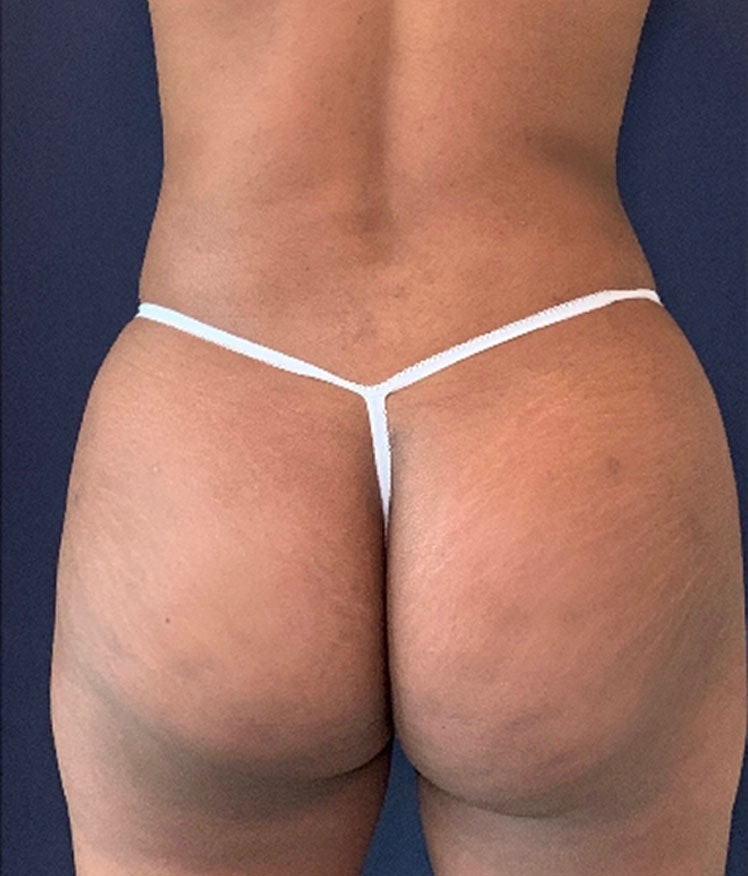 Brazilian Buttock Augmentation Gallery - Patient 13732967 - Image 2