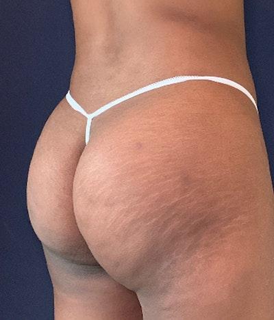 Brazilian Buttock Augmentation Gallery - Patient 13732967 - Image 4