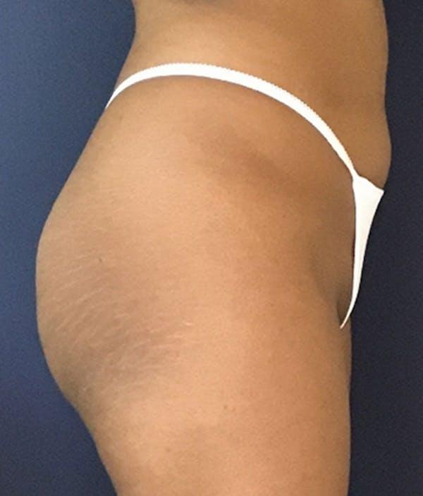 Brazilian Buttock Augmentation Gallery - Patient 13732967 - Image 5