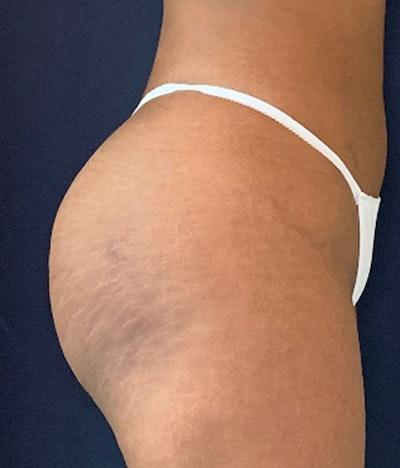 Brazilian Buttock Augmentation Gallery - Patient 13732967 - Image 6