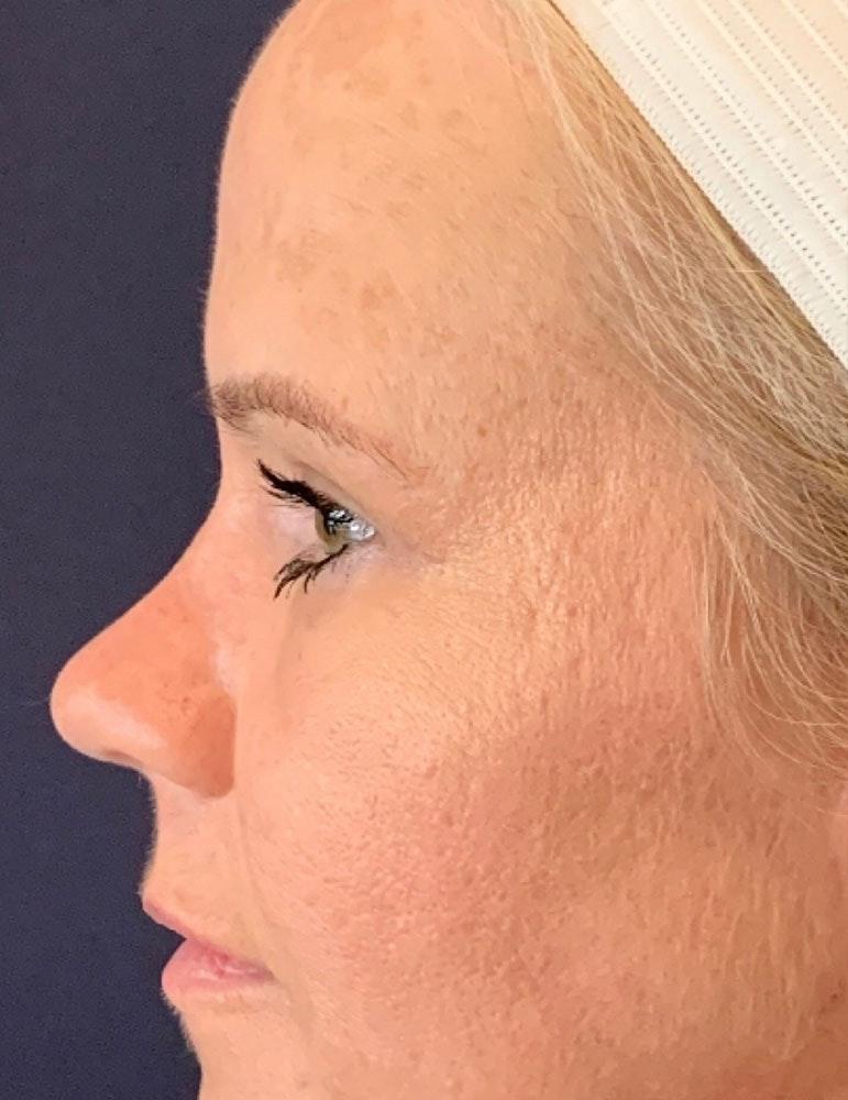 Blepharoplasty (Eyelid Surgery) Gallery - Patient 13733123 - Image 6