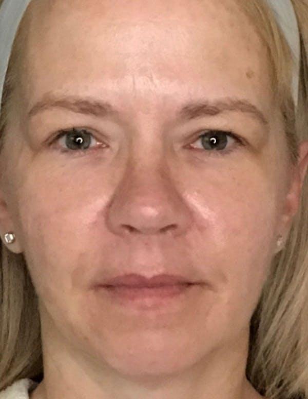 Blepharoplasty (Eyelid Surgery) Gallery - Patient 13733123 - Image 1
