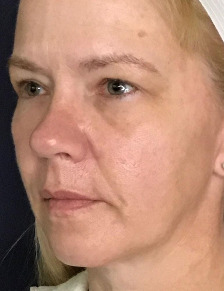 Blepharoplasty (Eyelid Surgery) Gallery - Patient 13733123 - Image 3