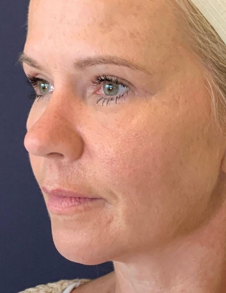 Blepharoplasty (Eyelid Surgery) Gallery - Patient 13733123 - Image 4