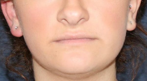 Lip Augmentation Gallery - Patient 13825819 - Image 1