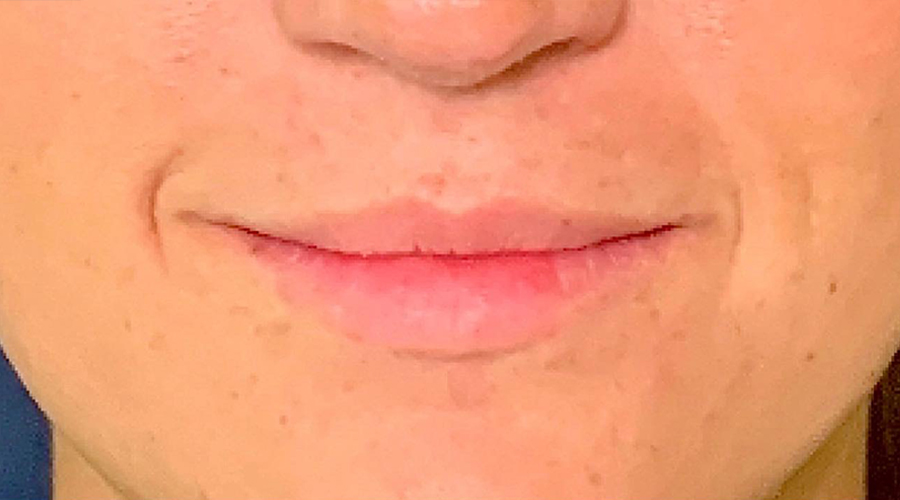 Lip Augmentation Gallery - Patient 13825820 - Image 2