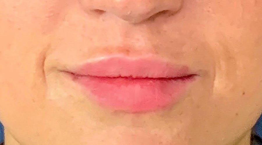 Lip Augmentation Gallery - Patient 13825820 - Image 2