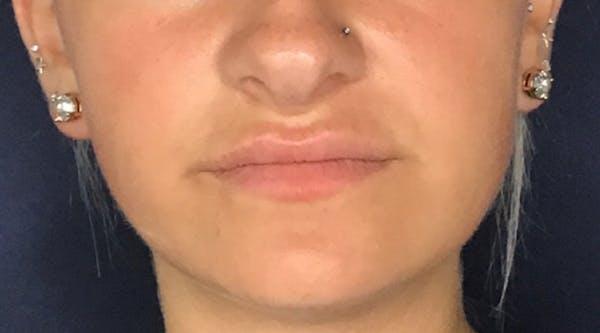 Lip Augmentation Gallery - Patient 13825819 - Image 2