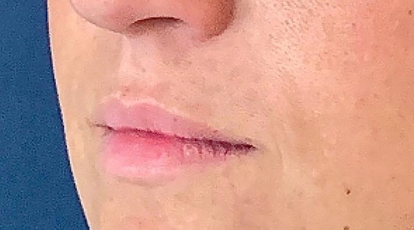 Lip Augmentation Gallery - Patient 13825820 - Image 3
