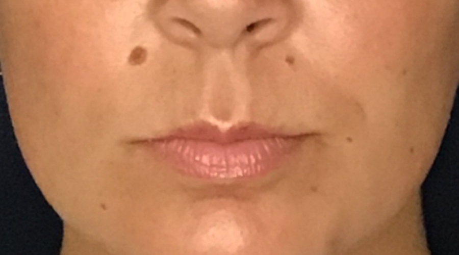 Lip Augmentation Gallery - Patient 13825821 - Image 3