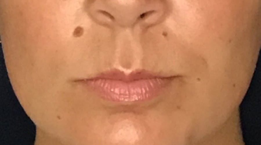 Lip Augmentation Gallery - Patient 13825821 - Image 1