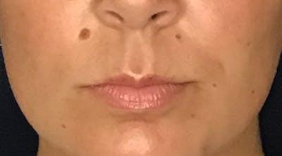 Lip Augmentation Gallery - Patient 13825821 - Image 1