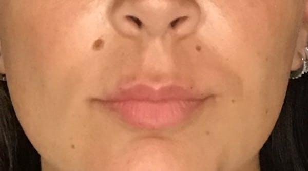 Lip Augmentation Gallery - Patient 13825821 - Image 2