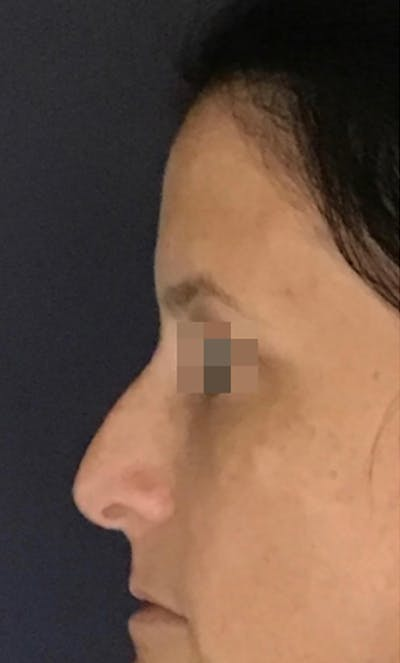 Dermal Fillers Gallery - Patient 13825869 - Image 1