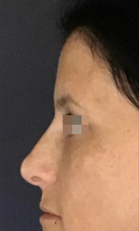Dermal Fillers Gallery - Patient 13825869 - Image 2