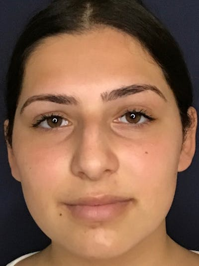 Rhinoplasty Gallery - Patient 13825962 - Image 1