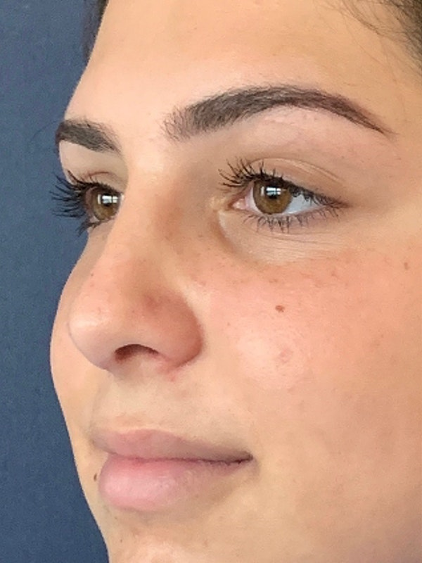 Rhinoplasty Gallery - Patient 13825962 - Image 4