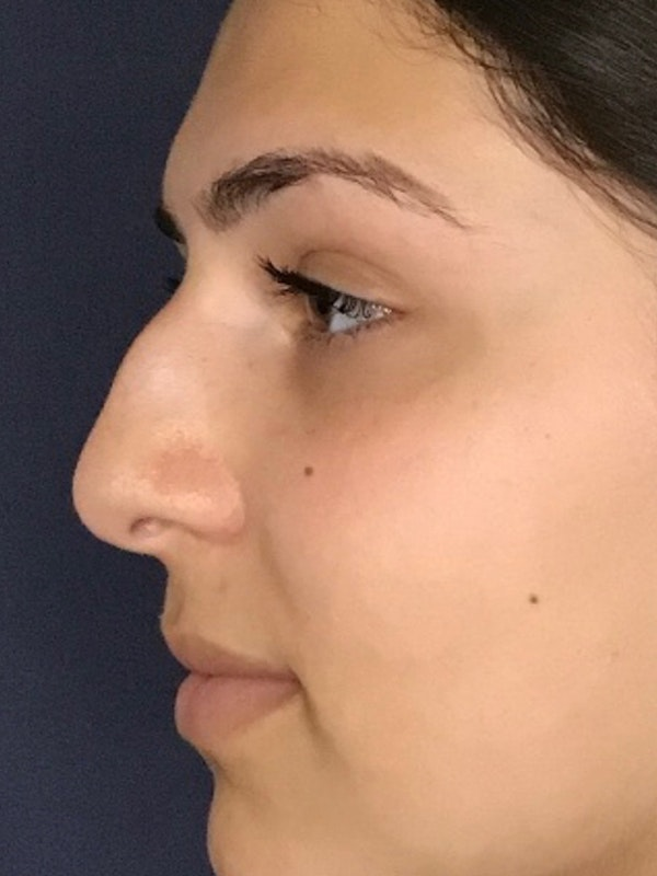 Rhinoplasty Gallery - Patient 13825962 - Image 5