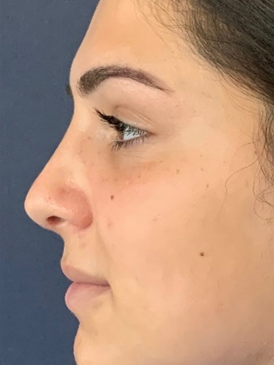 Rhinoplasty Gallery - Patient 13825962 - Image 6