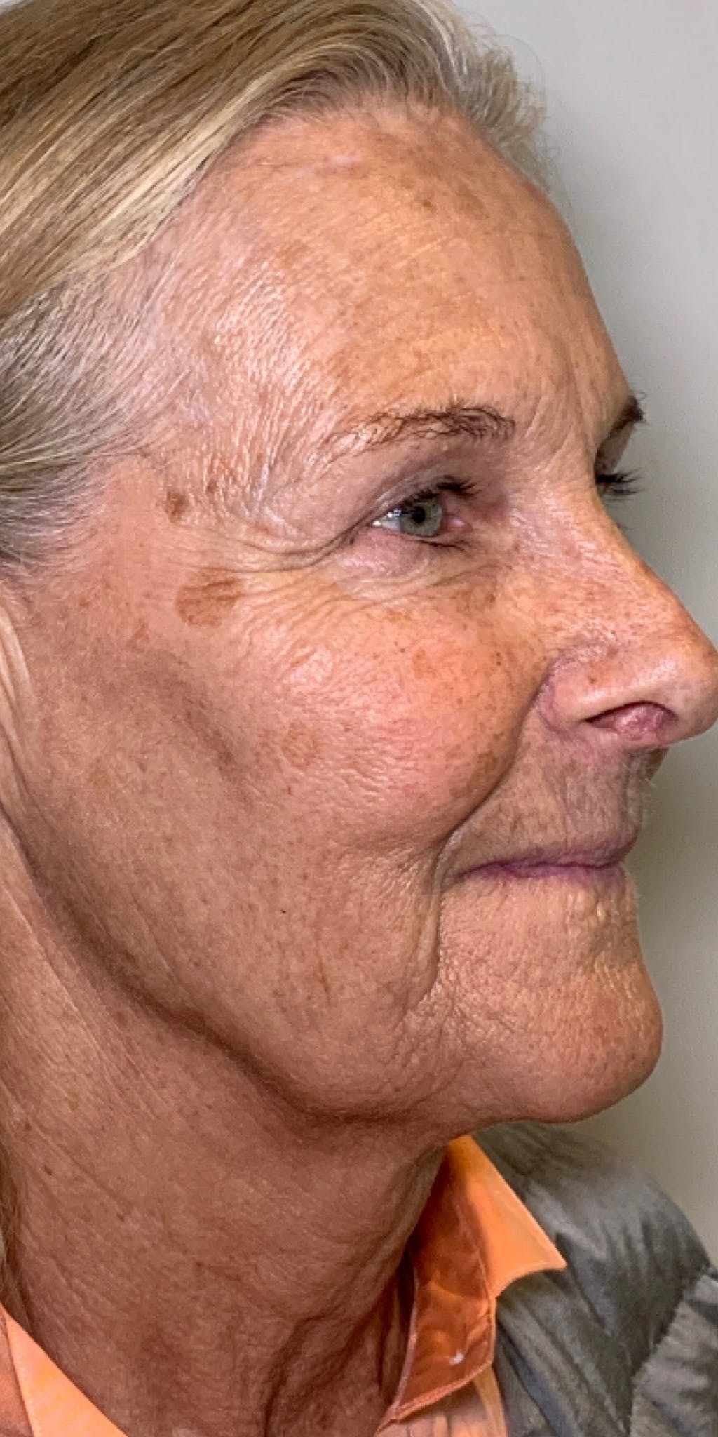 Sciton® BBL™ Gallery - Patient 13948516 - Image 1