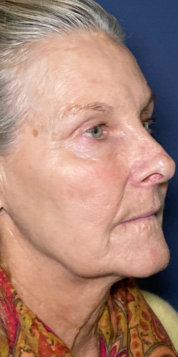 Sciton® BBL™ Gallery - Patient 13948516 - Image 2