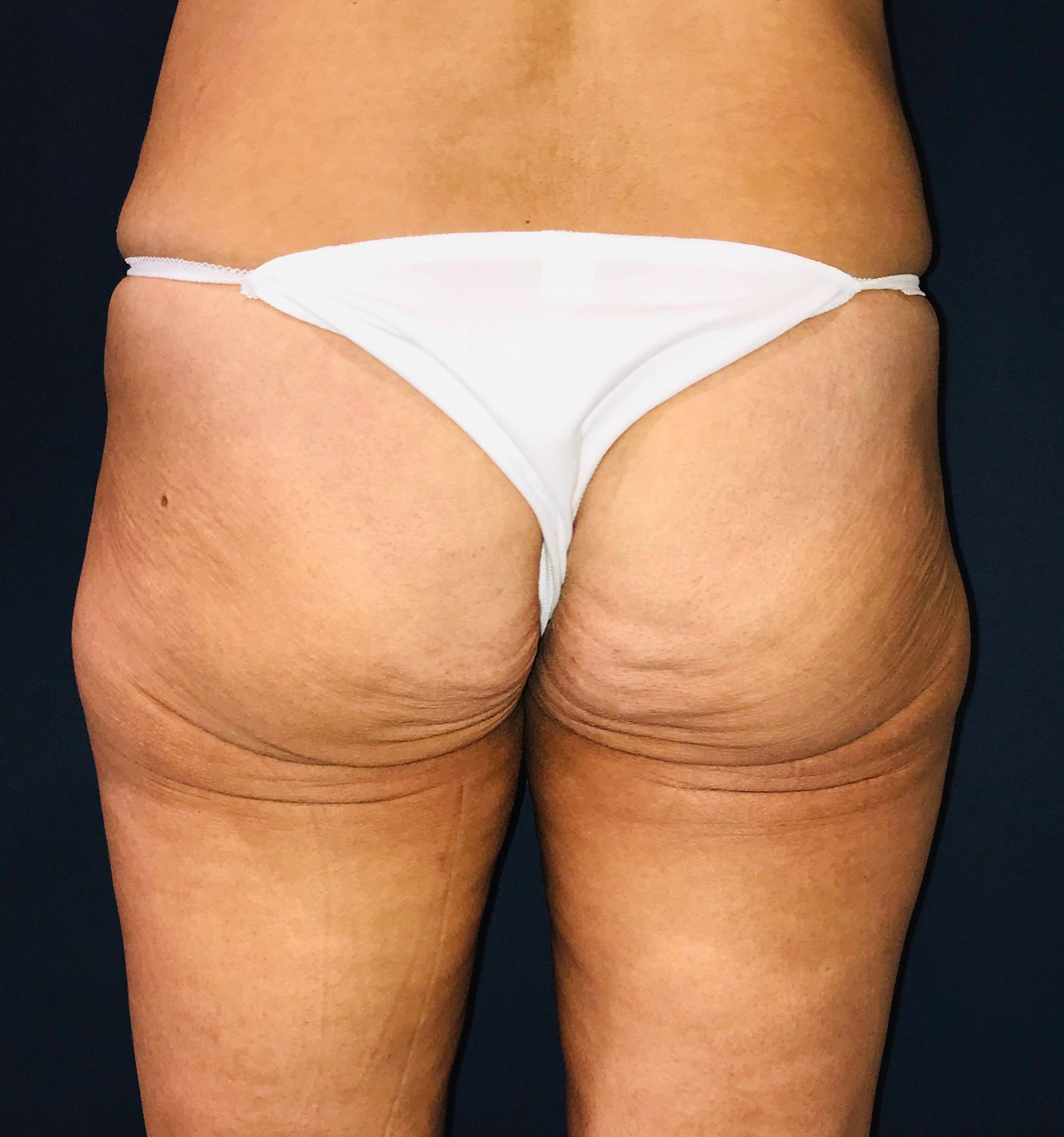 Brazilian Buttock Augmentation Gallery - Patient 14153196 - Image 3