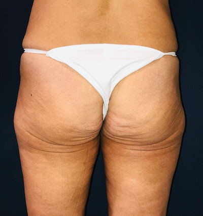 Brazilian Buttock Augmentation Gallery - Patient 14153196 - Image 1