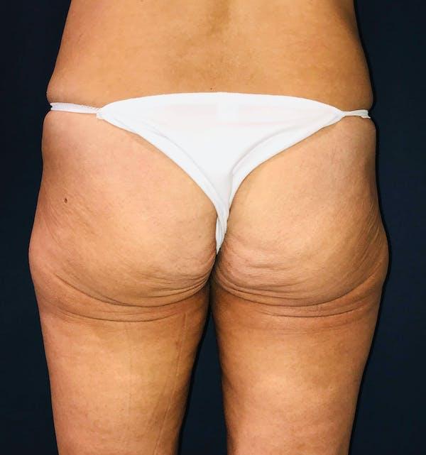 Brazilian Buttock Augmentation Gallery - Patient 14153196 - Image 1