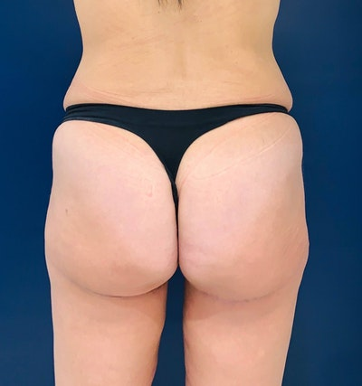 Brazilian Buttock Augmentation Gallery - Patient 14153196 - Image 2