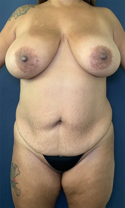 Mommy Makeover Gallery - Patient 17927105 - Image 1