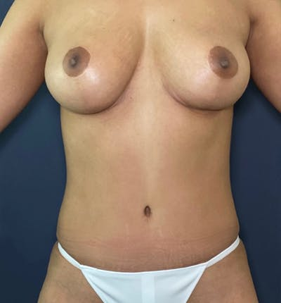Mommy Makeover Gallery - Patient 17927104 - Image 2
