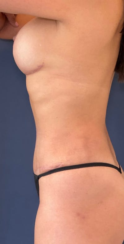 Mommy Makeover Gallery - Patient 17927106 - Image 8