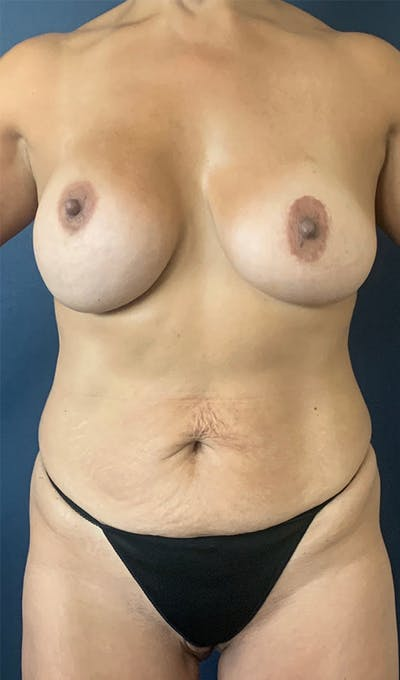 Mommy Makeover Gallery - Patient 17927106 - Image 1