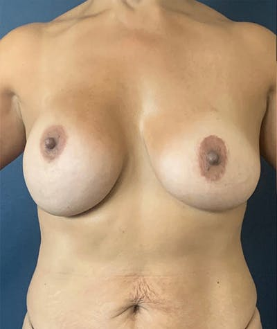 Breast Revision Gallery - Patient 18113830 - Image 1