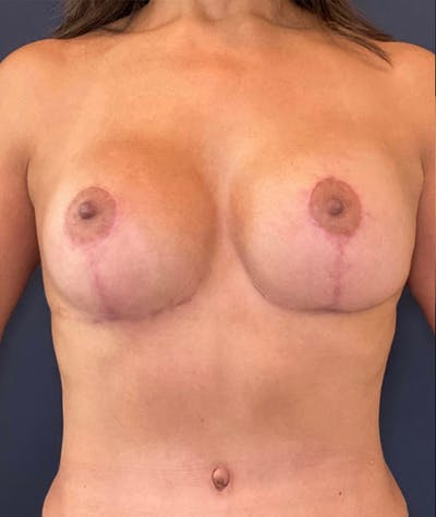 Breast Revision Gallery - Patient 18113830 - Image 2