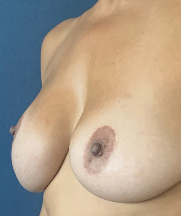 Breast Revision Gallery - Patient 18113830 - Image 3