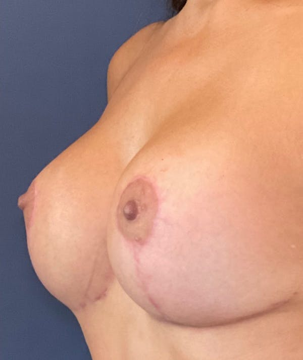 Breast Revision Gallery - Patient 18113830 - Image 4