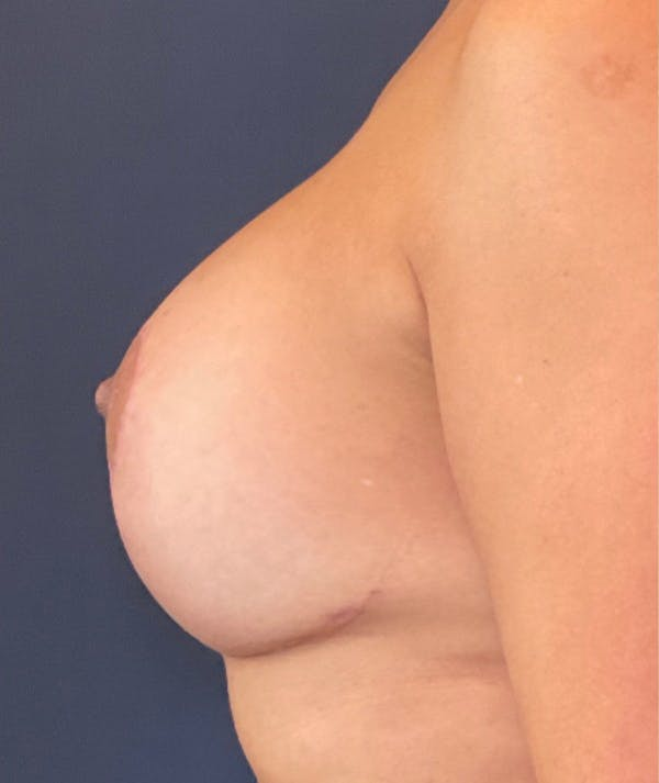 Breast Revision Gallery - Patient 18113830 - Image 6