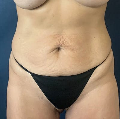 Tummy Tuck (Abdominoplasty) Gallery - Patient 18113797 - Image 1