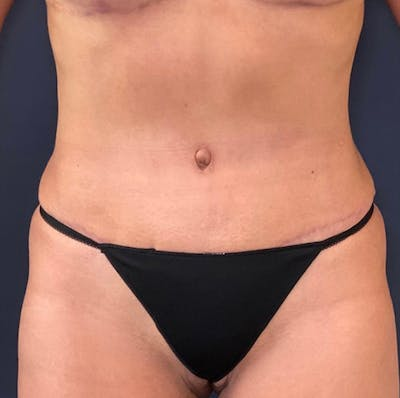 Tummy Tuck (Abdominoplasty) Gallery - Patient 18113797 - Image 2