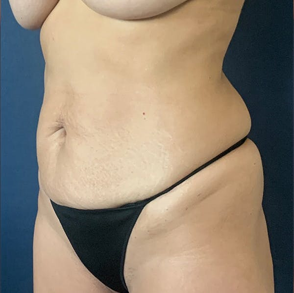 Tummy Tuck (Abdominoplasty) Gallery - Patient 18113797 - Image 3