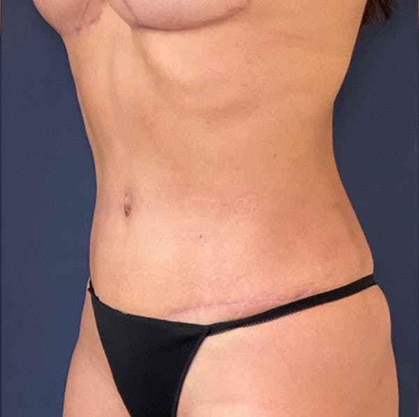 Tummy Tuck (Abdominoplasty) Gallery - Patient 18113797 - Image 4