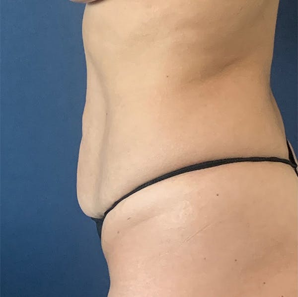 Tummy Tuck (Abdominoplasty) Gallery - Patient 18113797 - Image 5