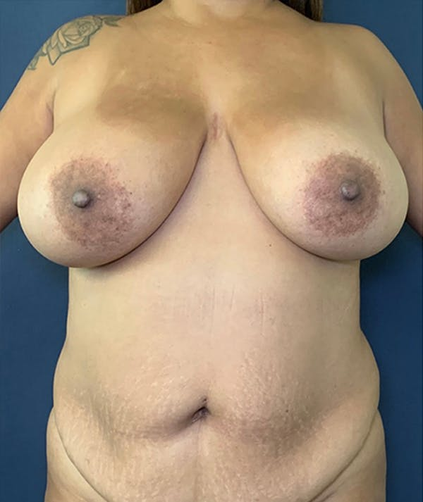 Breast Revision Gallery - Patient 18114224 - Image 1