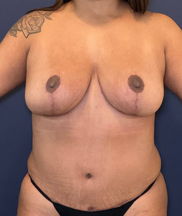 Breast Revision Gallery - Patient 18114224 - Image 2