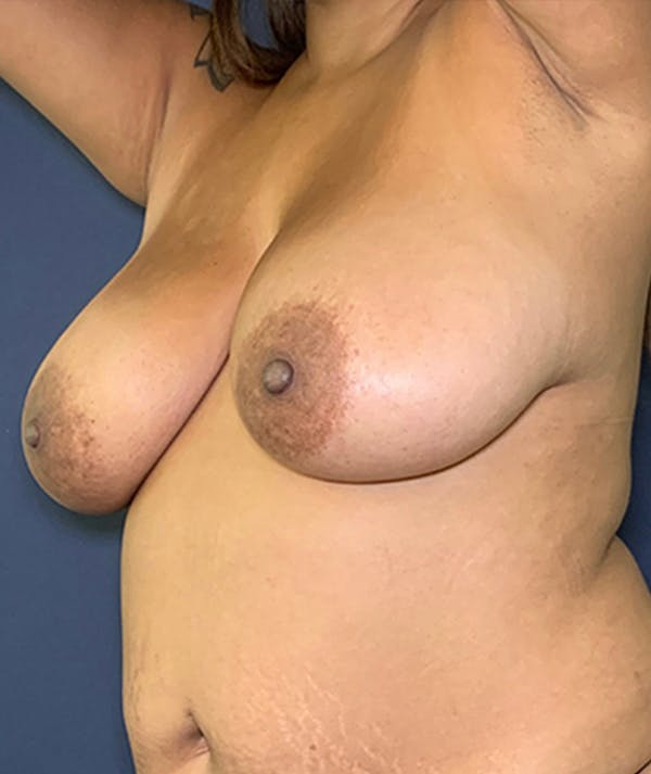 Breast Revision Gallery - Patient 18114224 - Image 3