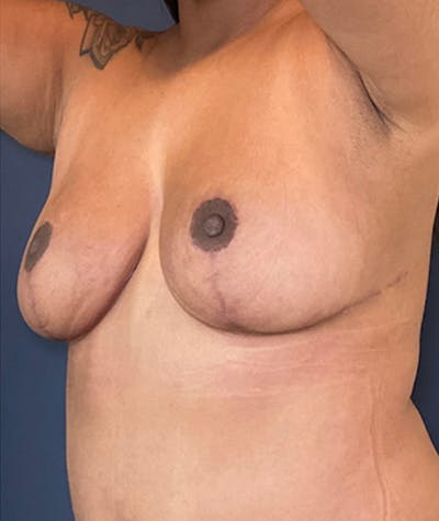 Breast Revision Gallery - Patient 18114224 - Image 4