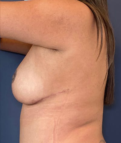 Breast Revision Gallery - Patient 18114224 - Image 6