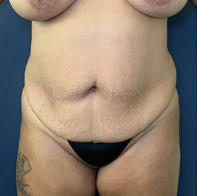 Tummy Tuck (Abdominoplasty) Gallery - Patient 18114256 - Image 1