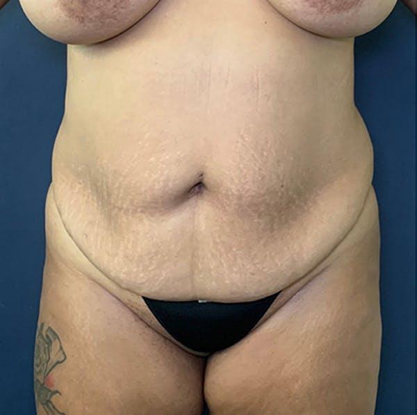 Tummy Tuck (Abdominoplasty) Gallery - Patient 18114256 - Image 1